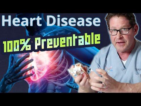 Hogyan kezelt stagnáló prosztatitis