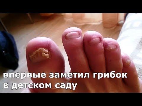 Die Behandlungen der Mykose der Nägel