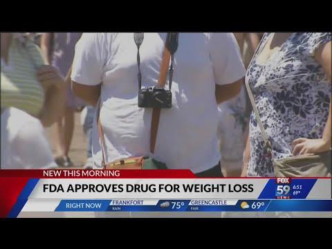Pierdere în greutate east sussex
