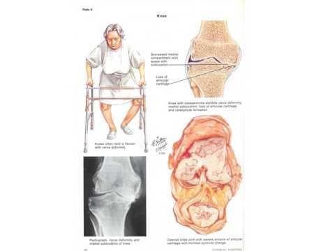Klinik für Rückenschmerzen