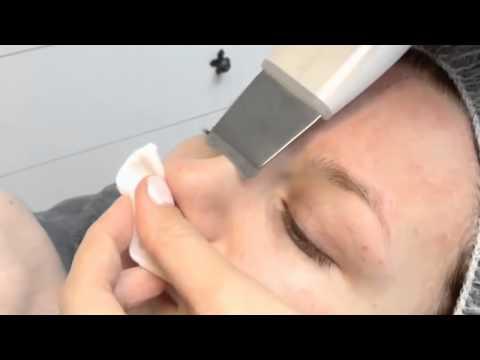 Лазерная шлифовка лица в махачкале цена