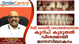 Full Mouth Reconstruction - Video