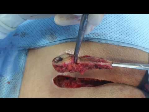 Les onguents et les gels pour les pieds à la varicosité des veines