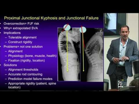 Drogen bei Entzündungen und Schmerzen im Rücken