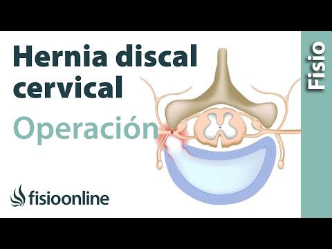 Hierbas para osteocondrosis