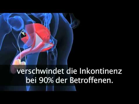 Calculous chronische Prostatitis Behandlung