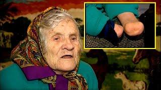 Polka z Kresów będąc dzieckiem straciła obydwie dłonie na Sybirze – Zobacz jak żyje sama na Ukrainie