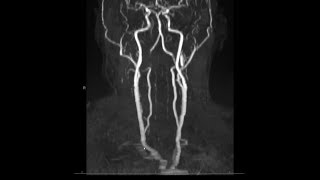Noncontrast MRA (magnetic resonance angiogram) neck radiology search pattern