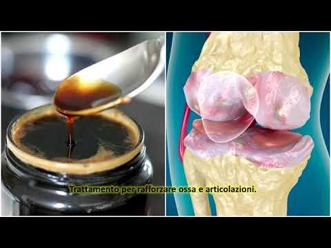 Scoliosi della colonna vertebrale cervicale e toracico