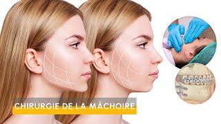 Video Chirurgie de la mâchoire