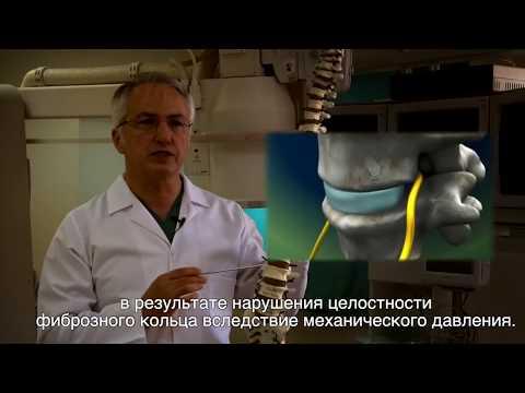 Bel Fıtığında 3 Dakikada Bıçaksız Çözüm (Rusça Altyazılı)