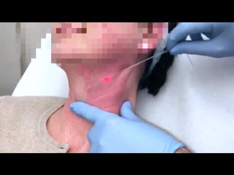 Candeggiamo la pelle di faccia sensibile
