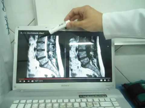 Esercizi per la schiena con il mal di schiena