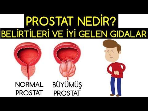 A prosztatitis fertőzések