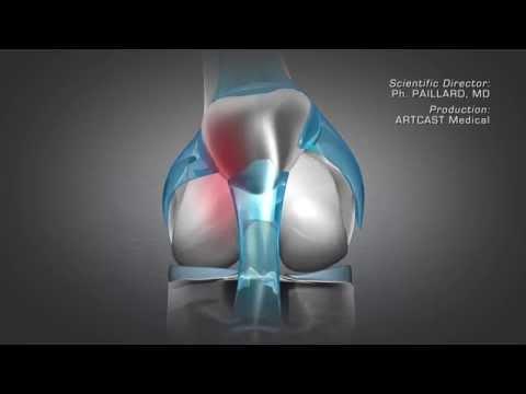 A csontok és ízületek foglalkozási betegségeinek sugárzó szemiotikája