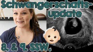 Schwangerschaftsupdate 8 + 9. SSW.   Schmierblutung, Hämatom & Harmonytest