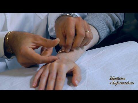 Terapia laser al collo osteochondrosis