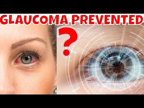 GLAUCOMA, Can Glaucoma Be Prevented