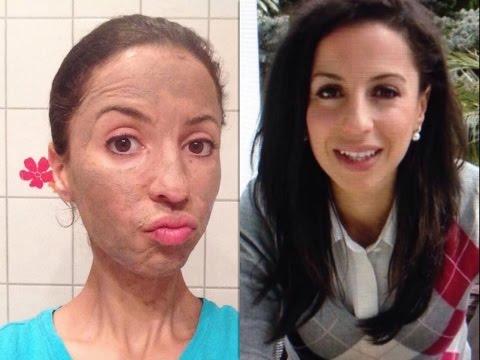 Welche Masken gegen den Haarausfall helfen