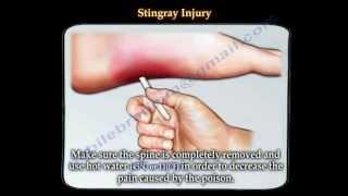 Stingray fish  injury - Everything You Need To Know - Dr. Nabil Ebraheim