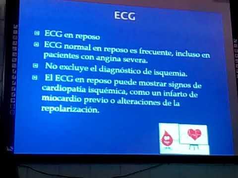 Encefalopatía neurocirculatoria de tipo hipertensiva