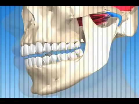Sintomi della colonna vertebrale di trattamento dellosteoporosi