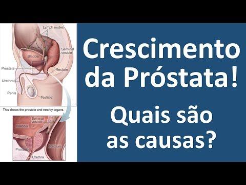 La terapia della prostata Chemical