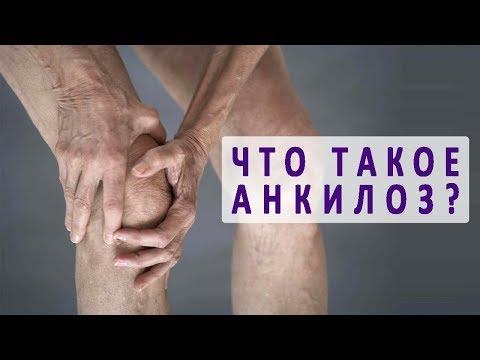 Что такое анкилоз сустава?