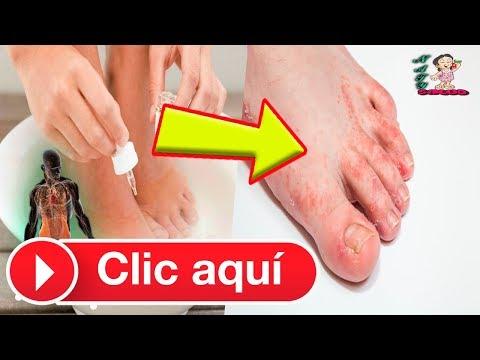 El hongo de los pie y las uñas el tratamiento eficaz