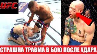УЖАСНАЯ ТРАВМА! ПЕРЕЛОМ ЛИЦЕВОЙ КОСТИ В БОЮ СТИВЕНС - ЭММЕТТ UFC ON FOX 28