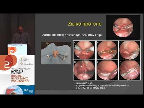 Υψηλάντης Π. - Πειραματική μελέτη της αναγεννητικής δραστηριότητας του ήπατος μετά από μερική ηπατεκτομή. Λαπαροσκοπική τεχνική σε υψηλή πίεση πνευμοπεριτοναίου έναντι ανοικτής τεχνικής