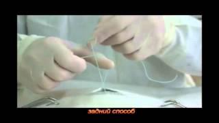 Узлы в хирургии (часть 1)