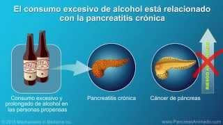 Cáncer de páncreas: signos, síntomas y factores de riesgo