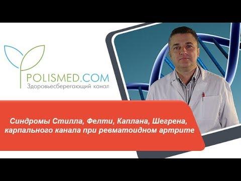 Синдромы Стилла, Фелти, Каплана, Шегрена, карпального канала при ревматоидном артрите