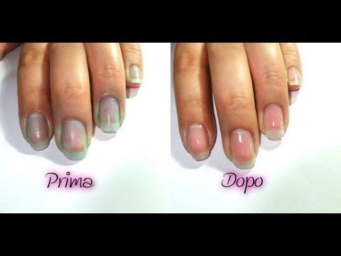 Come eliminare le macchie di smalto dalle unghie