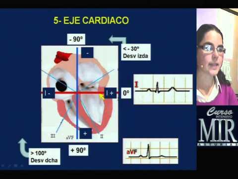 La presión arterial y un rábano picante