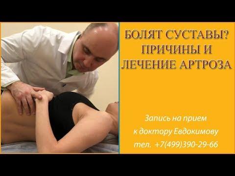 Болят суставы? Причины и лечение артроза.