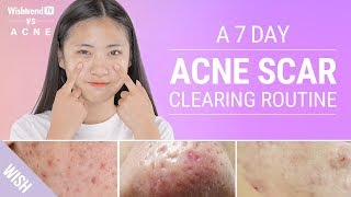 Acne Scars: How to Prevent & Quickly Remove Various Types   Wishtrend TV VS ACNE