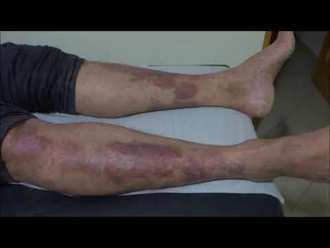 Eczema em tratamento de mãos uma dieta