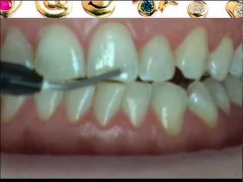 Установка скайса на зуб