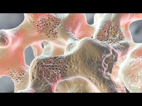 Raising hell in Osteochondrose der Halswirbelsäule