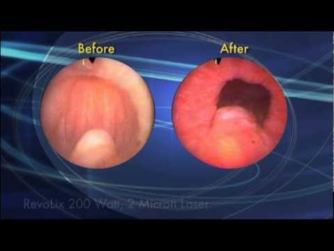 Prostatakrebs-Behandlung zu Hause