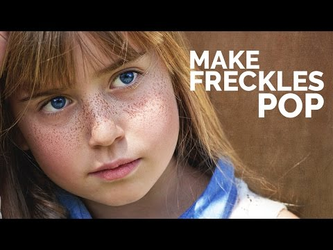 Sa binti lumitaw freckles