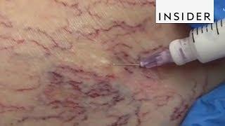 How Doctors Get Rid of Spider Veins