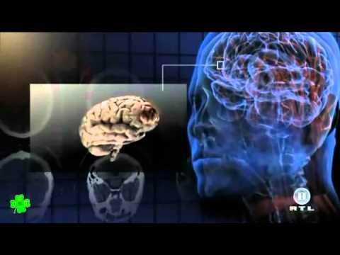 Hypertonie Behandlung Droge