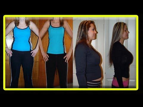 Perte de poids avec les agonistes de la glp-1
