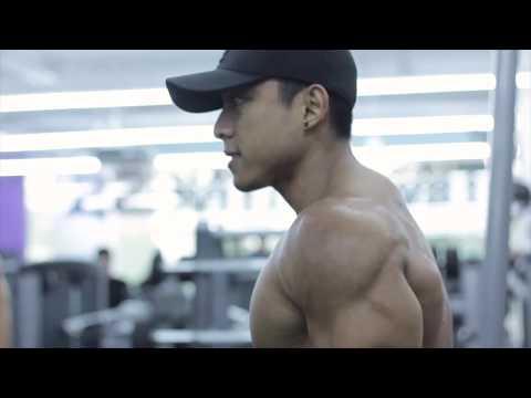 La hernie du muscle direct du ventre