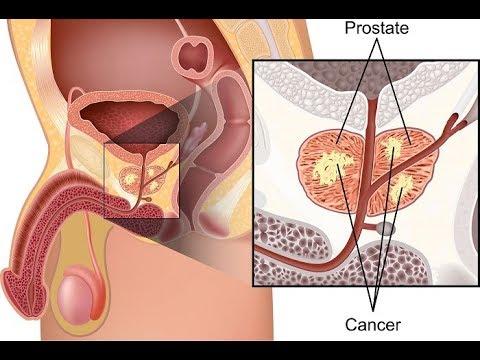 Si le cancer de la prostate à 60 ans