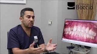 Rehabilitación Oral – Dr Carlos Torres