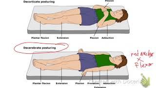 Decerebrate and decortication position